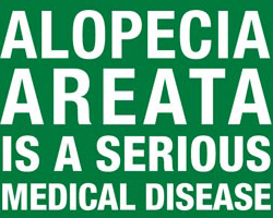 Alopecia Areata is a serious medical disease