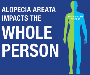 Alopecia Areata impacts the whole person